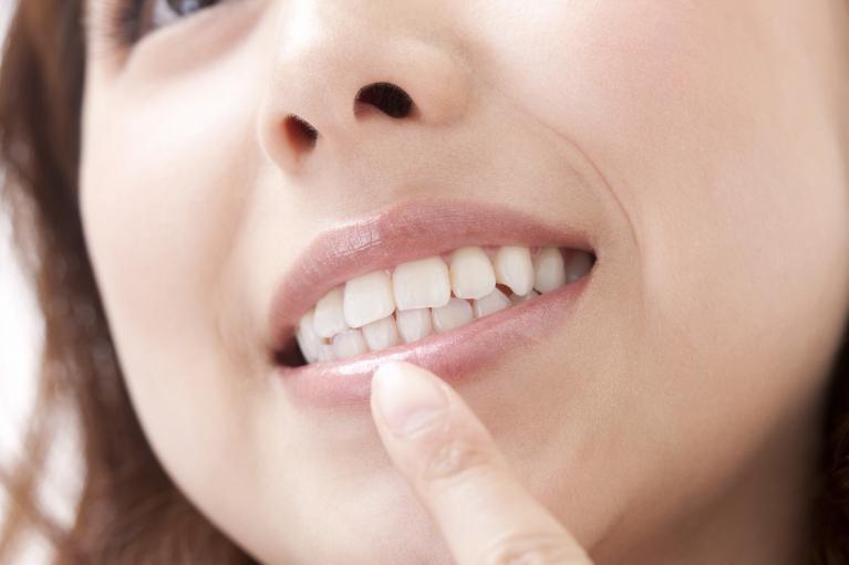 歯茎のメラニン色素除去